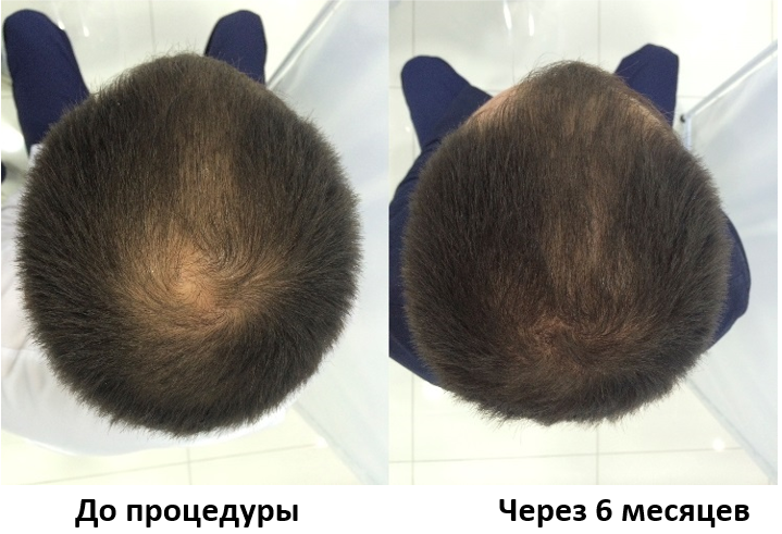 препараты для роста волос с селеном