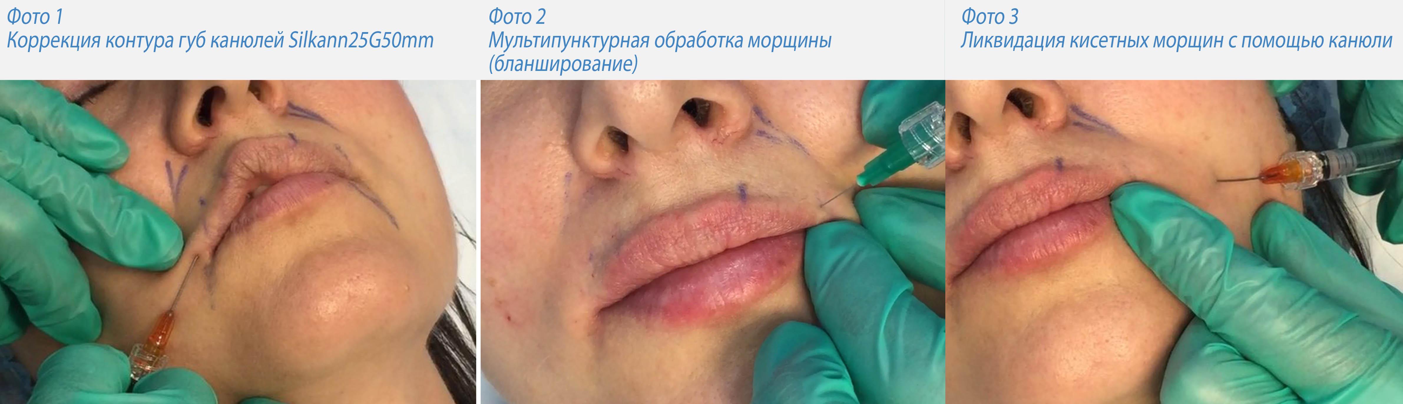шугаринг верхней губы видео